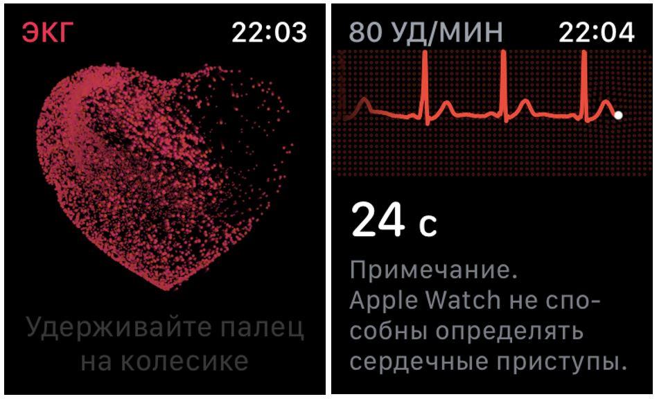 ЭКГ apple
