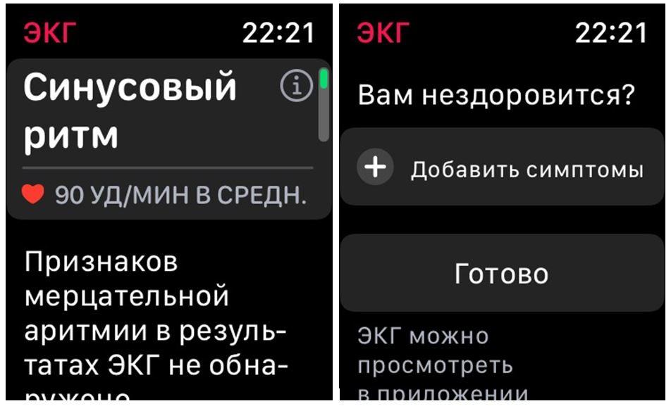 экг эппл